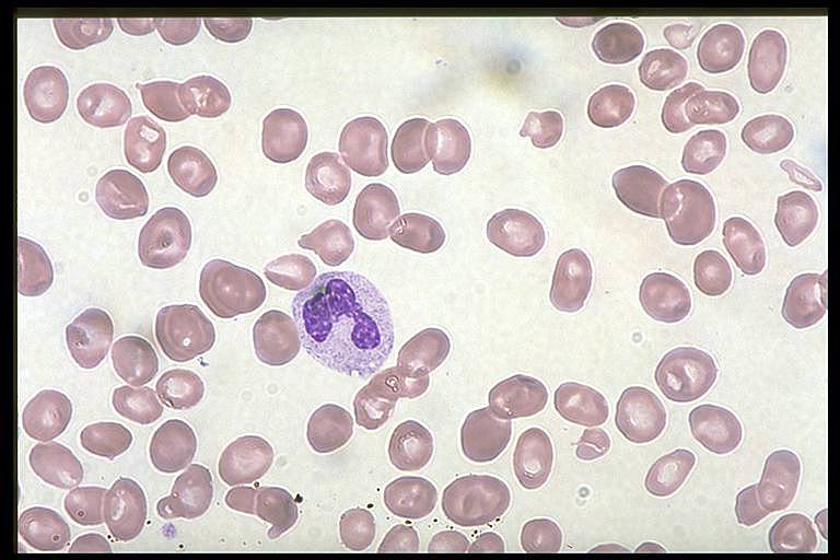 Case 2 B12 Deficiency Smear